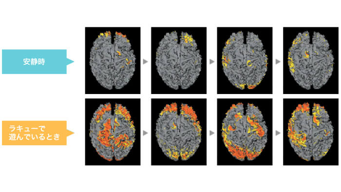 LaQと脳の関係